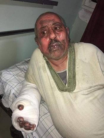 Mustapha Jelbi et sa femme gravement brûlés dans une explosion d'une bonbonne de gaz